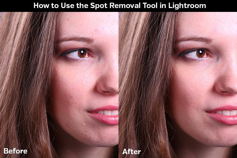 Spot Removal lightroom